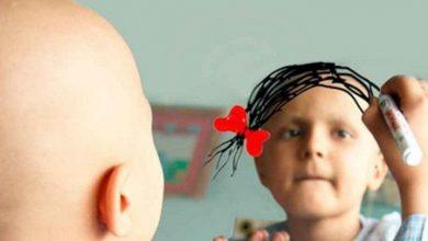 Photo of Cáncer infantil es una de las principales causas de muerte en los niños