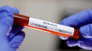 Photo of Gobierno anuncia que hará pruebas gratis para detectar coronavirus en próximos días