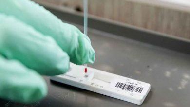 Photo of Aprobado en Alemania primer estudio en voluntarios de vacuna contra el Covid-19