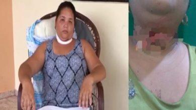 Photo of Mujer que casi pierde la vida al enredarse hilo de chichigua en Salcedo narra lo sucedido