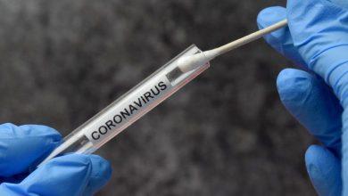 Photo of Reportan 425 casos nuevos de coronavirus; hay 157 pacientes en UCI y 75 con ventiladores