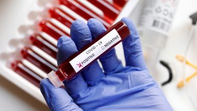 Photo of Reportan 1,560 nuevos casos de coronavirus y ocho muertes
