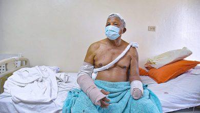 Photo of Sigue suelto hombre que cercenó una mano a un anciano de 81 años