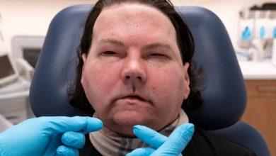 Photo of Realizan con éxito en EEUU el primer trasplante simultáneo de cara y manos
