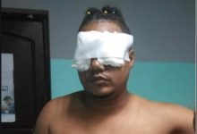 Photo of Clavan tijeras en los ojos a hijo de un locutor en La Romana