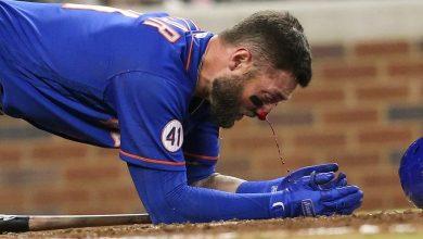 Photo of Un jugador de béisbol recibe un brutal pelotazo en el rostro a más de 150 km/h
